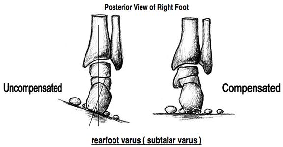 Rearfoot Varus Footmaxx