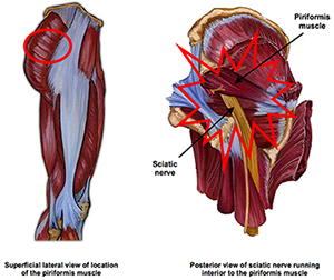 Piriformis Syndrome - Footmaxx